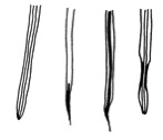 Drawing of roots afflicted by red stele root rot